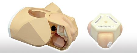 A Markelov szimulátor kezeli a prosztatagyulladást - Szimulátor és prosztatagyulladás